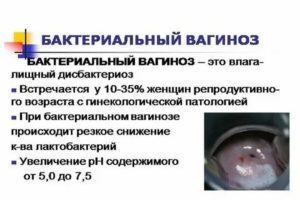 Чем лечить баквагиноз при ГВ?