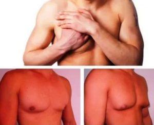 Анализы при подозрении на гинекомастию