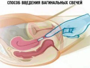 Допустим ли секс при лечении лактогелем и клиндацином?