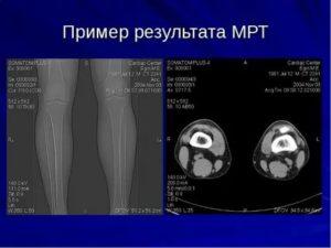 Результат МРТ, нужно ли лечение?