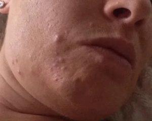 Высыпания на лице после аборта