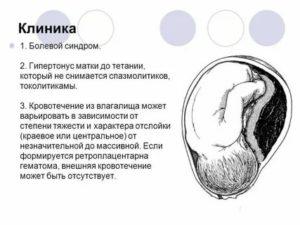 Лечение межоболочной гематомы
