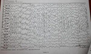 Помогите расшифровать результат ЭЭГ, ничего не понимаю