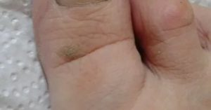 Темное пятно на пальце