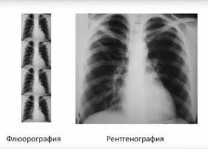 Заменит ли рентген флюорографию?