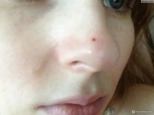 Раз в два месяца красный прыщ на носу