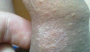 Коричневое пятно на головке пениса