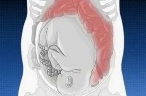 Проблемы с кишечником при беременности