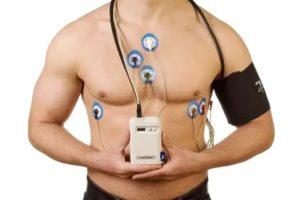 Можно ли курить при прохождении суточного мониторинга сердца?