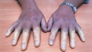Синеют кисти рук