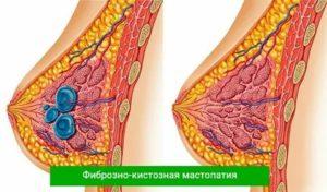 ЭКО при мастопатии