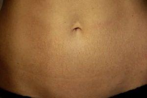 Растяжки и сыпь на животе, что можно сделать?