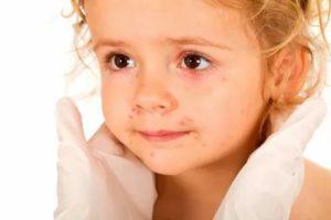 Как не заразить ребенка герпесом?