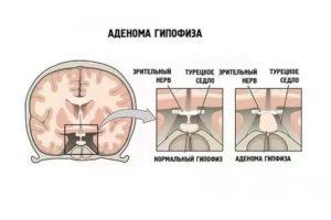 Можно ли забеременеть с аденомой гипофиза?