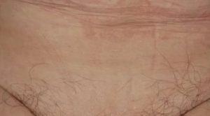 Выпадение волос, зуд в паху