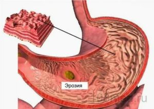Может ли гастрит перейти в рак желудка?