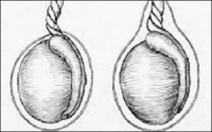 Левое яичко поднимается  вверх
