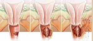 После секса опухают половые губы