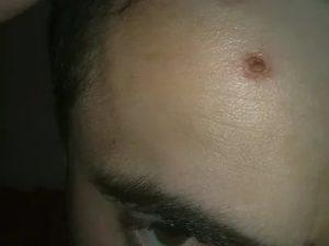 Разодрала прыщ в большую рану на лице, теперь сильная припухлость, что делать?
