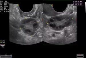 Мультифолликулярные яичники и возможность беременности