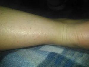 Пятна на ногах после солярия
