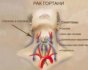 Опух язык, тяжело дышать (фото), что это?