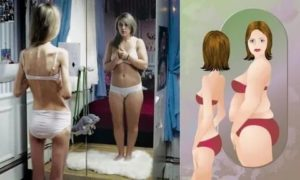 Дочь хочет похудеть, опасаемся анорексии