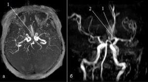 Почему МРТ не показало аневризму?