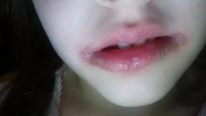 Пять лет обдираю кожу у верхней губы