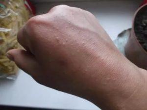 Странные бугорки на коже рук