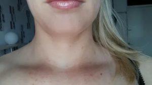 Одиночная сыпь на шее и плече