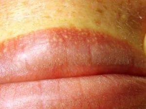 После гриппа на головке члена появилась красная сыпь