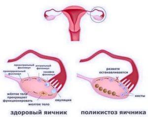 СПКЯ, обильные менструации, анализы