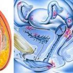 Можно ли во время менструации пить гинекологический сбор?