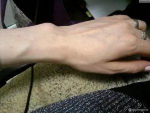 Подвижность вены на кисти руки