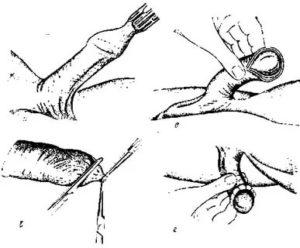 Больно прикасаться к оголенной головке полового члена сухими руками