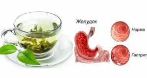 Можно ли пить зелёный чай при гастродуодените?