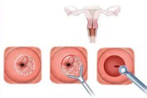 Очень обильные месячные после биопсии шейки матки