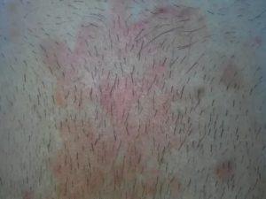Красные шелушащиеся пятна на лобке, что это может быть?