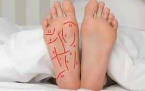 Что это за линии на ногах?