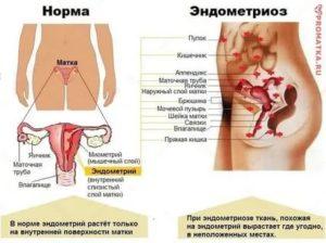 По какой причине в области гениталий у девушки может гореть и печь?