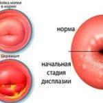 Есть ли вероятность беременности, если слез презерватив?