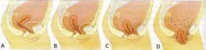 После родов выписали депантол, начались сильные рези во влагалище
