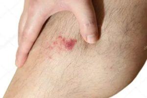 Мокнущие раны в разных частях тела