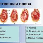 Регрессивная беременность