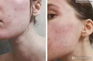 Как определить есть ли аллергия на аевит?
