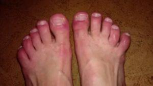 Зуд и отек пальцев ног