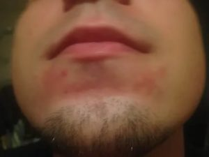 Раздражение на коже от поцелуев