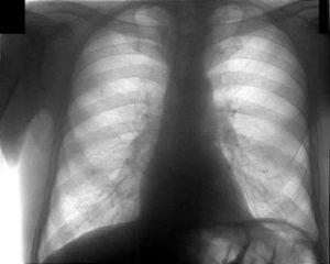 Все ли нормально по рентгену?