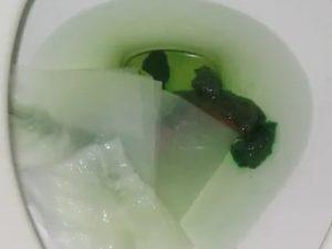 Вместо кала зелёная вода с примесями еды